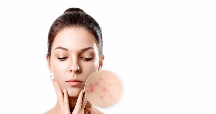 read here about how to treat hormonal acne naturally