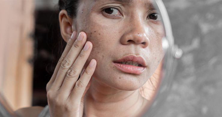 find here best face wash for dark spots